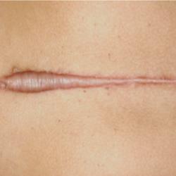 keloids_surgery