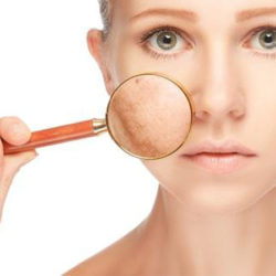 skin-pigmentation-1